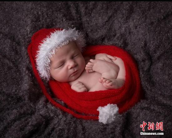 美国女子九分钟连生六胞胎发生率仅为四十七亿分之一