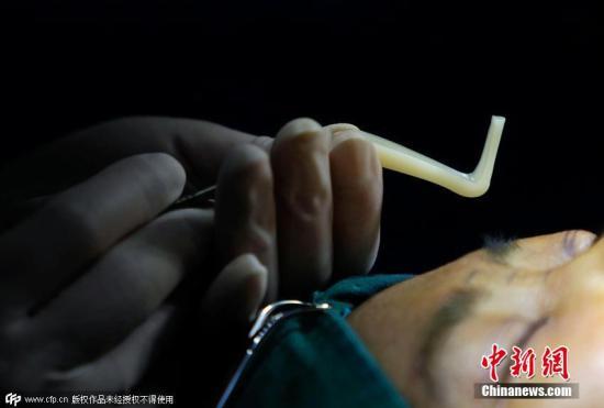 材料图。图片滥觞:CFP视觉中国