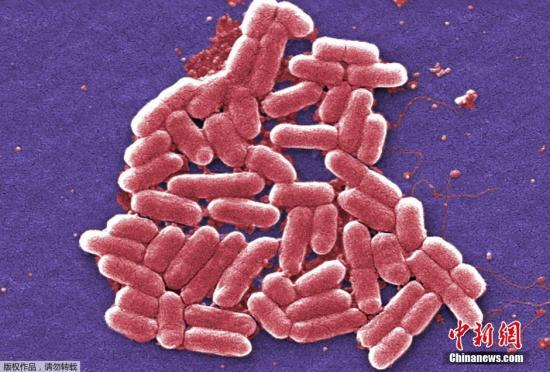 Chinese scientists achieve research in treating superbacteria