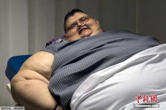 资料图片:男子的身体因为肥胖面临严重的疾病威胁。