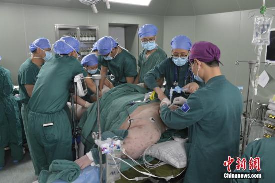 """5月11日,26岁湖北武汉男子黄涛(化名)在成都市第三人民医院接受减重手术。三个月前,黄涛从武汉乘坐救护车来到成都,当时体重达到530斤,被称为中国""""首胖"""",经过多科训练后减到440斤,在摆脱了严重的呼吸衰竭、低氧血症等症状后于今日正式手术,预计此次手术后体重将减到至220斤左右。钟欣 摄"""