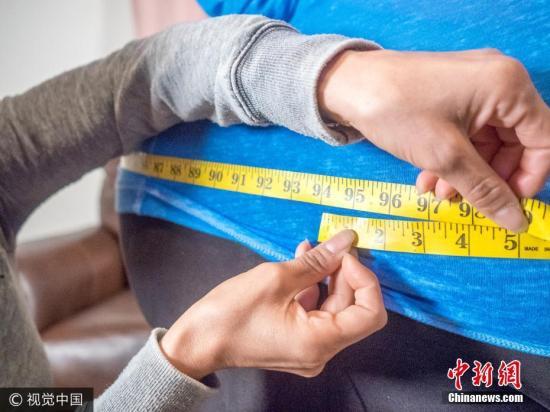 资料图:肥胖者。图片来源:视觉中国