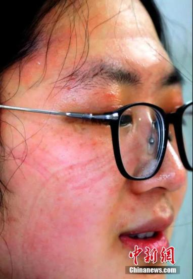 一名医护人员素颜的脸上勒痕久难褪去。供图