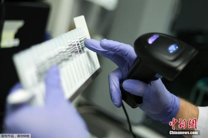 当地时间10月14日,比利时布鲁塞尔列日大学展示了一款可以由检测者自行收集样本的新冠肺炎检测唾液采样设备。