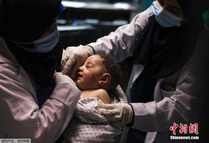 5月17日消息,加沙al-Shati难民营在当地时间5月15日遭袭,一名5个月大的婴儿幸存,其他7名家庭成员全部遇难。图为婴儿在医院接受治疗。